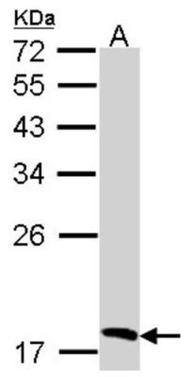 anti-Biliverdin Reductase B/BLVRB, Polyclonal, Novus Biologicals 0.1mL;
