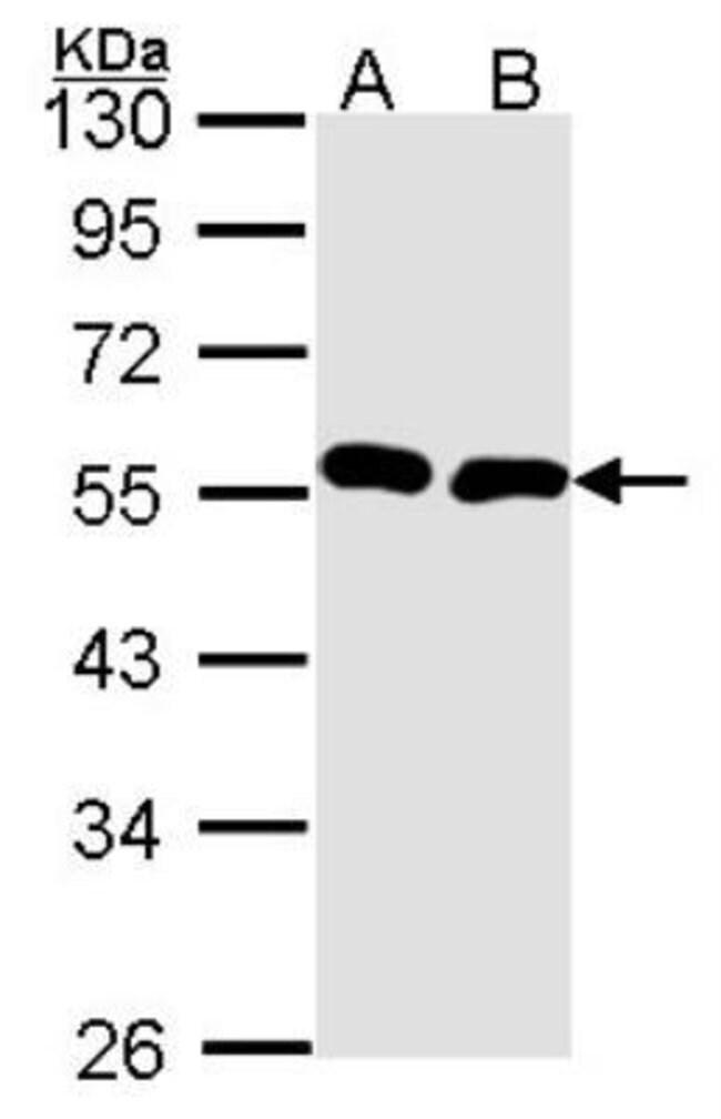 anti-BMP-9, Polyclonal, Novus Biologicals 0.1mL; Unlabeled:Life Sciences