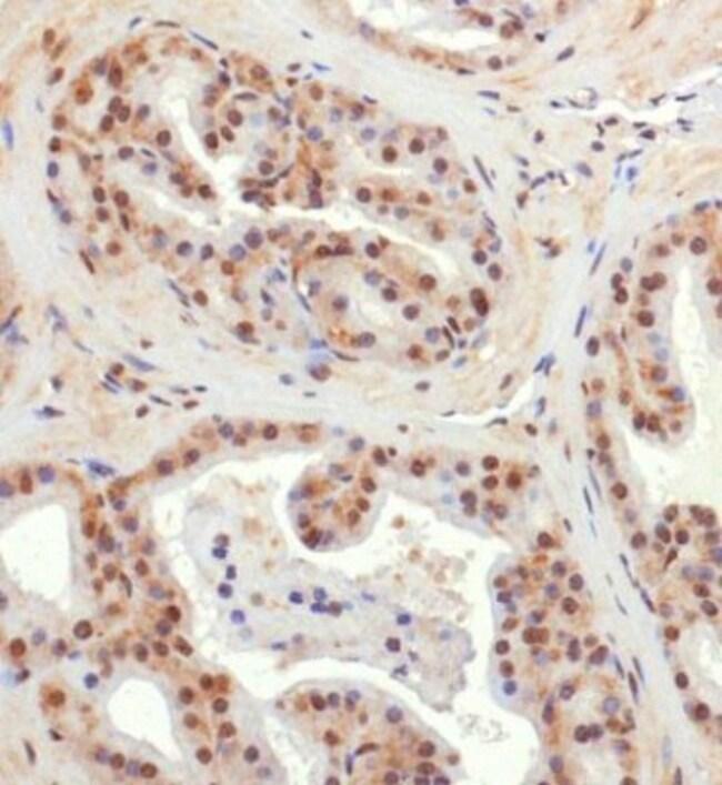 anti-BNIP3L, Polyclonal, Novus Biologicals 0.025mL; Unlabeled:Life Sciences