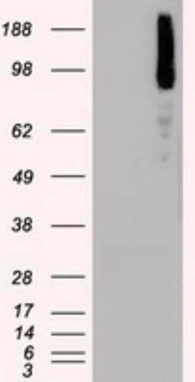 anti-B-Raf, Clone: 5A9, Novus Biologicals 0.1mL; Unlabeled:Life Sciences