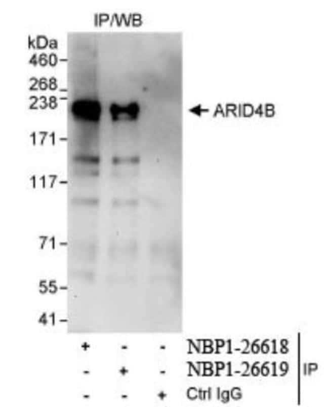 anti-BRCAA1, Polyclonal, Novus Biologicals 0.1mg; Unlabeled:Life Sciences
