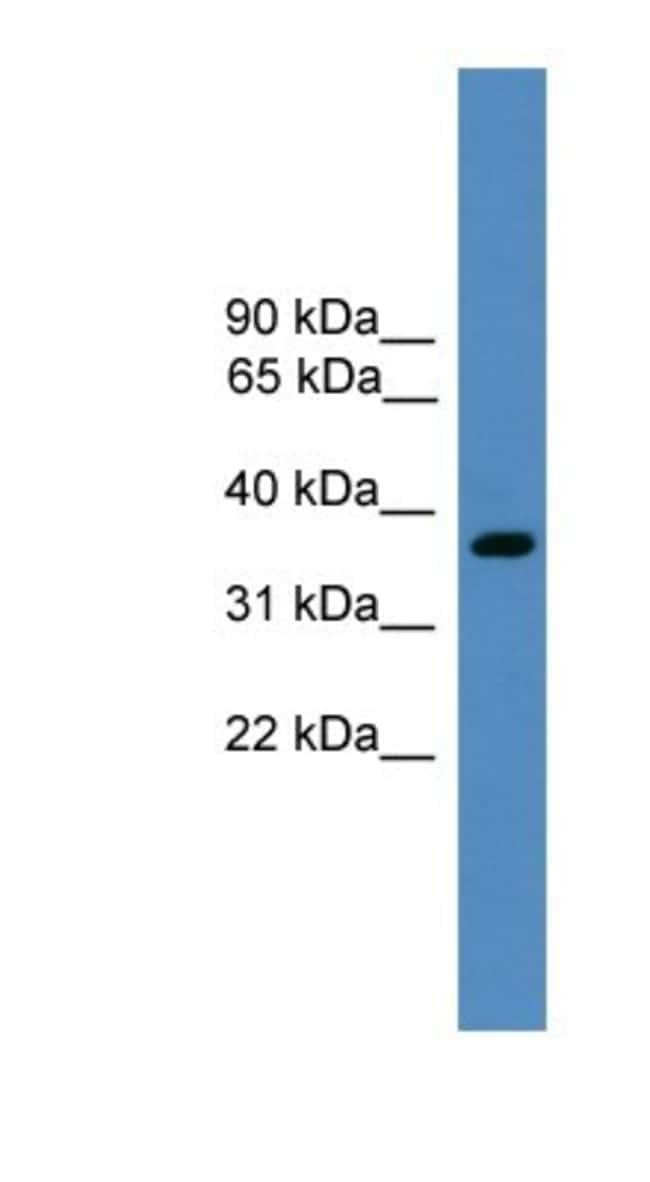 BSND Rabbit anti-Human, Polyclonal, Novus Biologicals 100µL; Unlabeled:Life