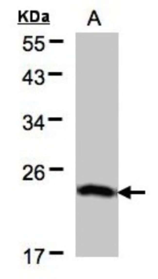 anti-BTF3, Polyclonal, Novus Biologicals 0.1mL; Unlabeled:Life Sciences