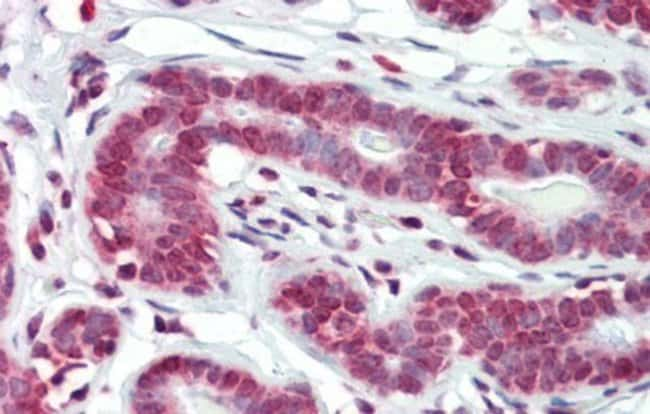 BXDC5 Rabbit anti-Human, Polyclonal, Novus Biologicals 20µL; Unlabeled
