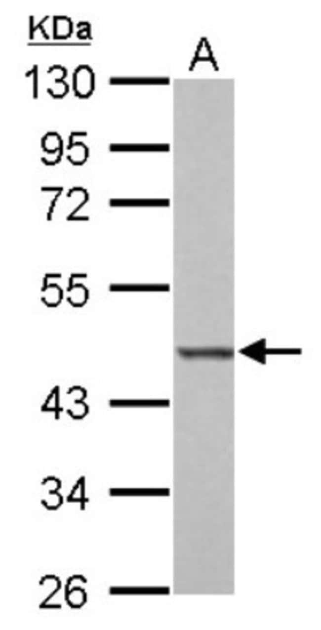anti-BZW2, Polyclonal, Novus Biologicals 0.1mL; Unlabeled:Life Sciences