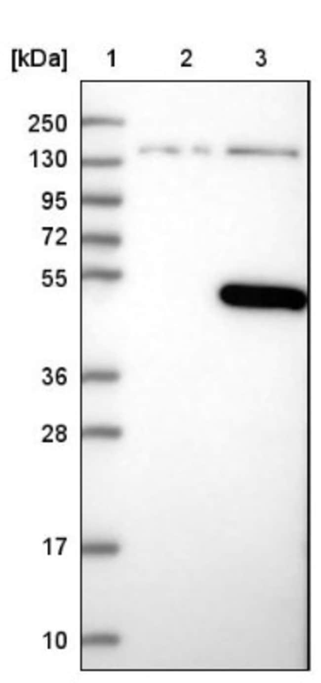anti-C10orf88, Polyclonal, Novus Biologicals 0.1mL; Unlabeled:Life Sciences