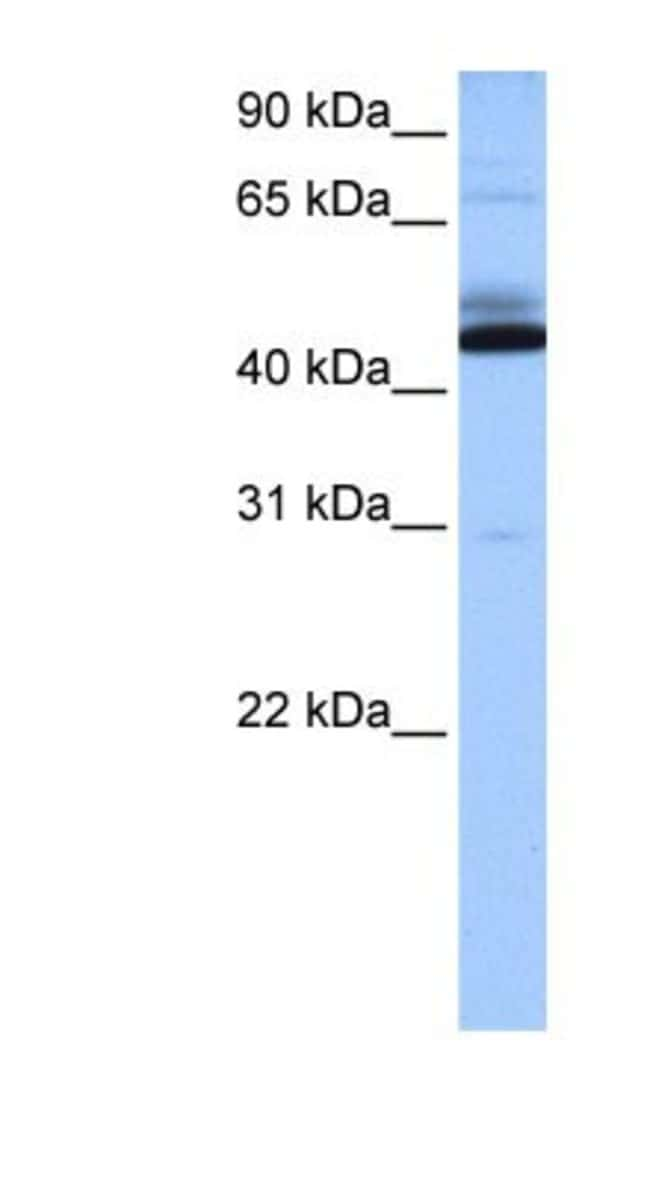 C15orf27 Rabbit anti-Human, Polyclonal, Novus Biologicals 20µL; Unlabeled