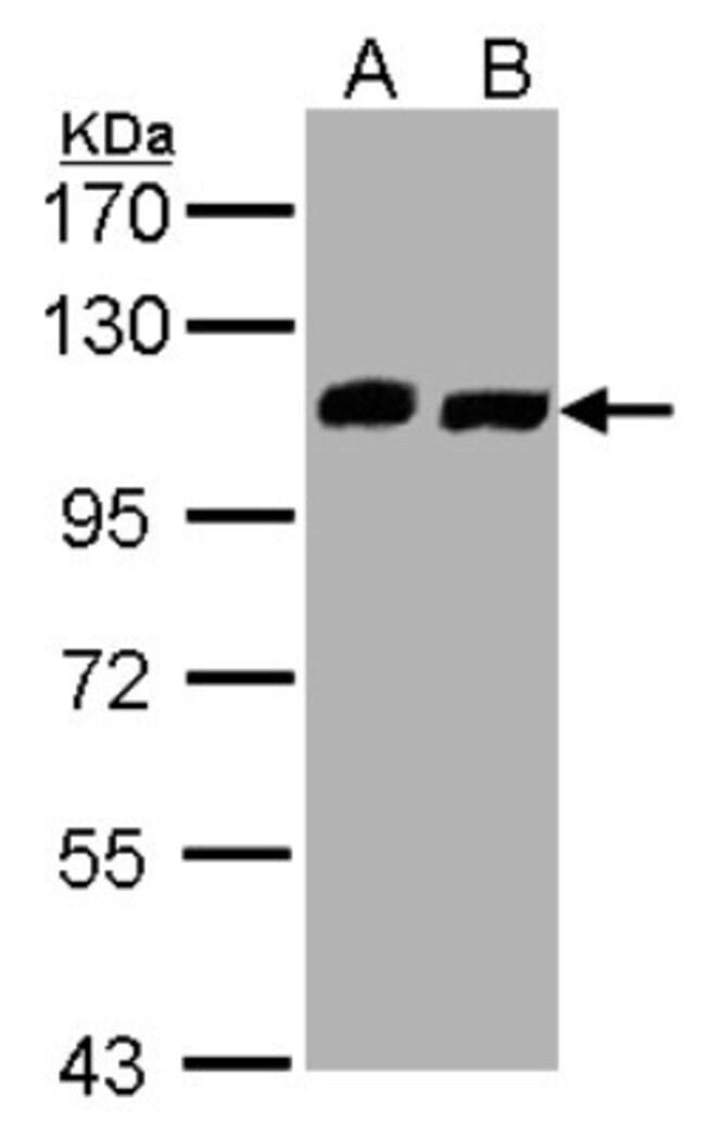 anti-C16orf62, Polyclonal, Novus Biologicals 0.1mg; Unlabeled:Life Sciences