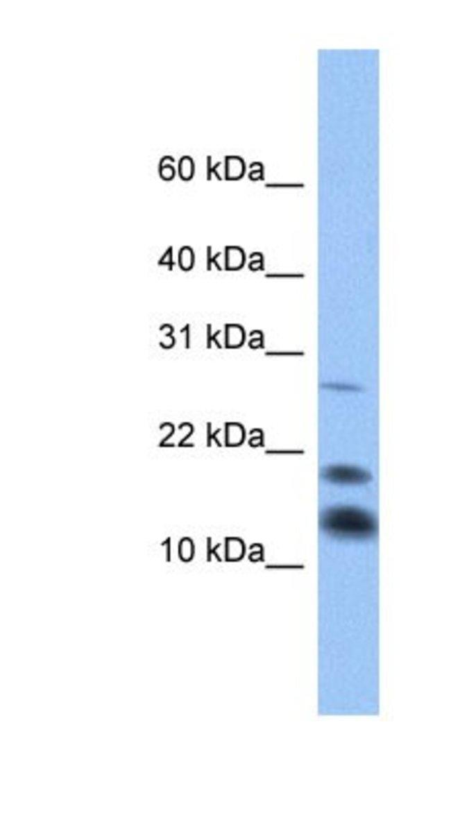 C1D Rabbit anti-Human, Polyclonal, Novus Biologicals 100µL; Unlabeled:Life