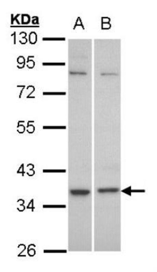 anti-C5L2/GPR77, Polyclonal, Novus Biologicals 0.1mg; Unlabeled:Antibodies