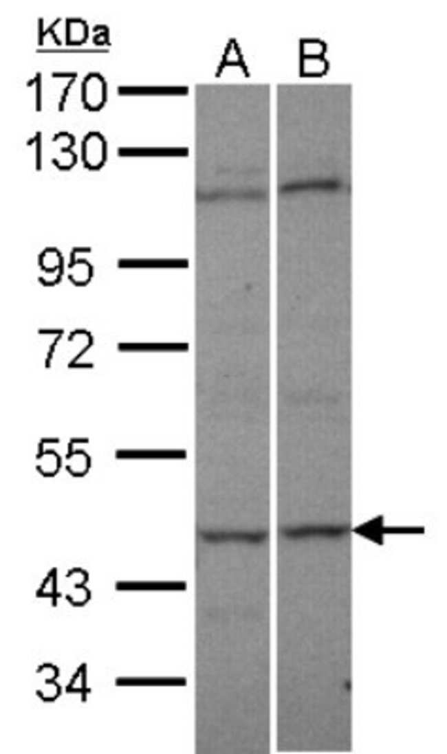 anti-C9orf98, Polyclonal, Novus Biologicals 0.1mL; Unlabeled:Life Sciences