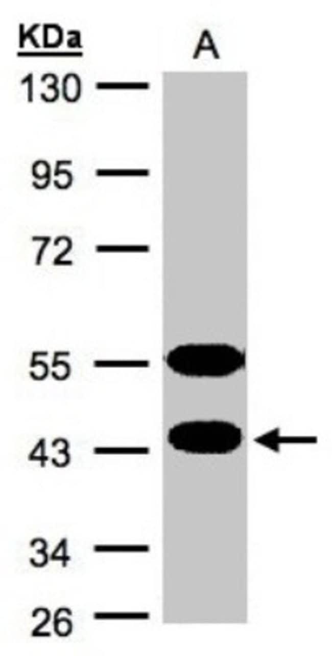 anti-CABS1, Polyclonal, Novus Biologicals 0.1mg; Unlabeled:Antibodies