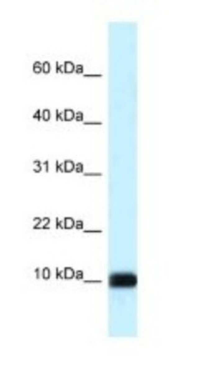 CALML3 Rabbit anti-Human, Polyclonal, Novus Biologicals 20µL; Unlabeled