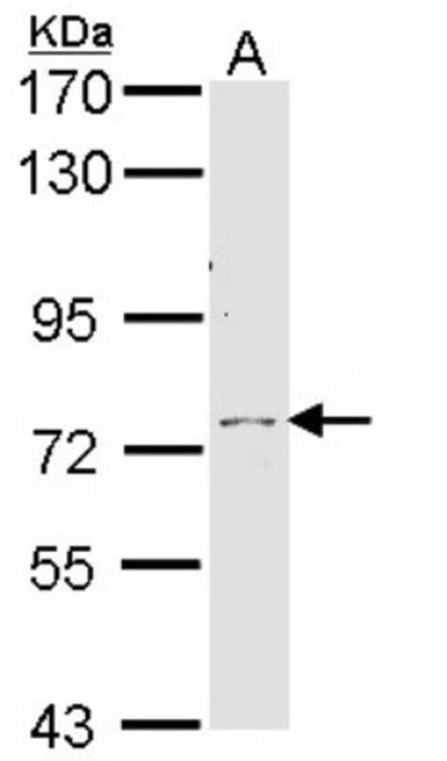 anti-Calpain 10, Polyclonal, Novus Biologicals 0.1mL; Unlabeled:Antibodies