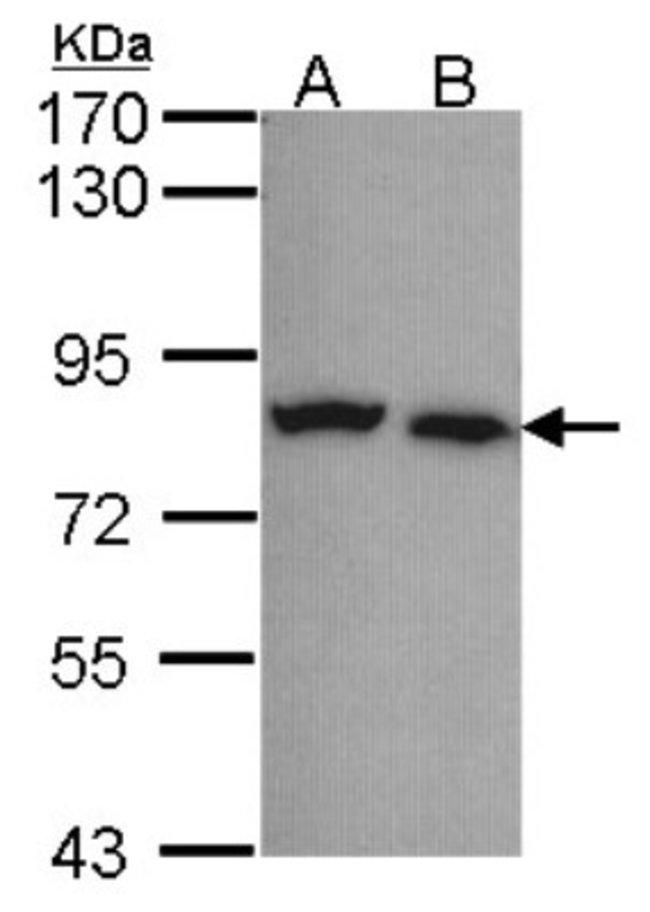 anti-Calpain 5, Polyclonal, Novus Biologicals 0.1mL; Unlabeled:Life Sciences