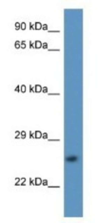 Calpain S2 Rabbit anti-Human, Polyclonal, Novus Biologicals 100µL;