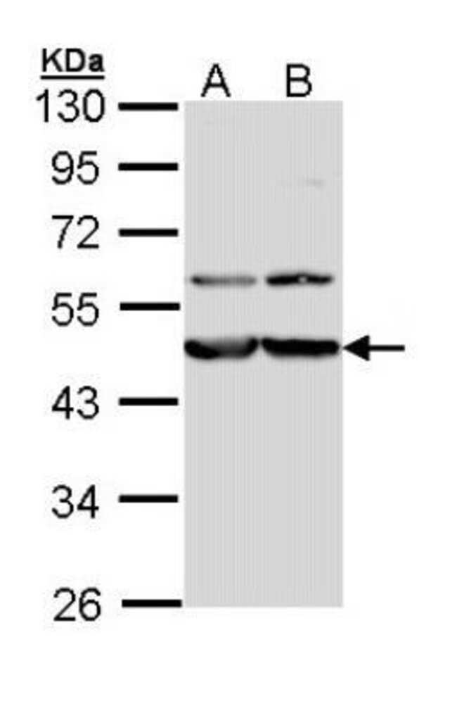 anti-Calreticulin-2/CALR3, Polyclonal, Novus Biologicals 0.1mg; Unlabeled:Life