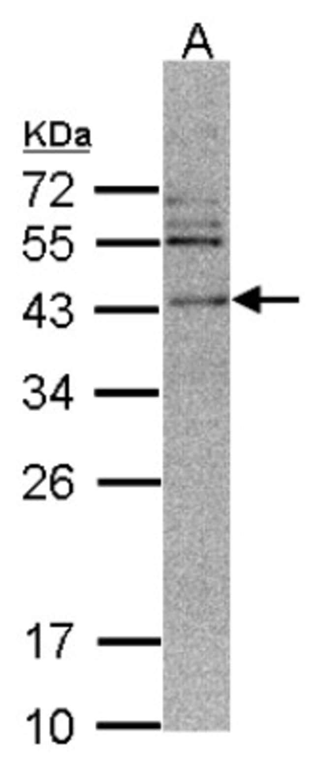 anti-CAMKID, Polyclonal, Novus Biologicals 0.1mL; Unlabeled:Life Sciences