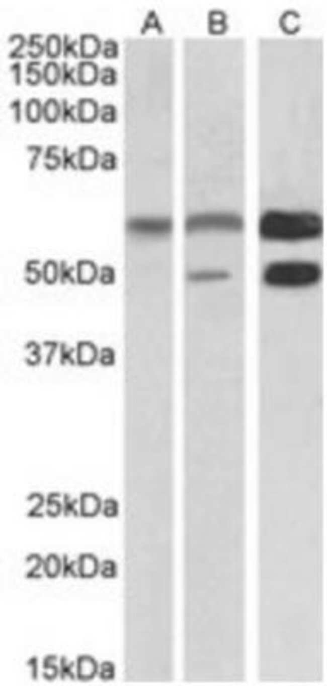 anti-CaM Kinase II alpha, Polyclonal, Novus Biologicals 0.1mg; Unlabeled:Life