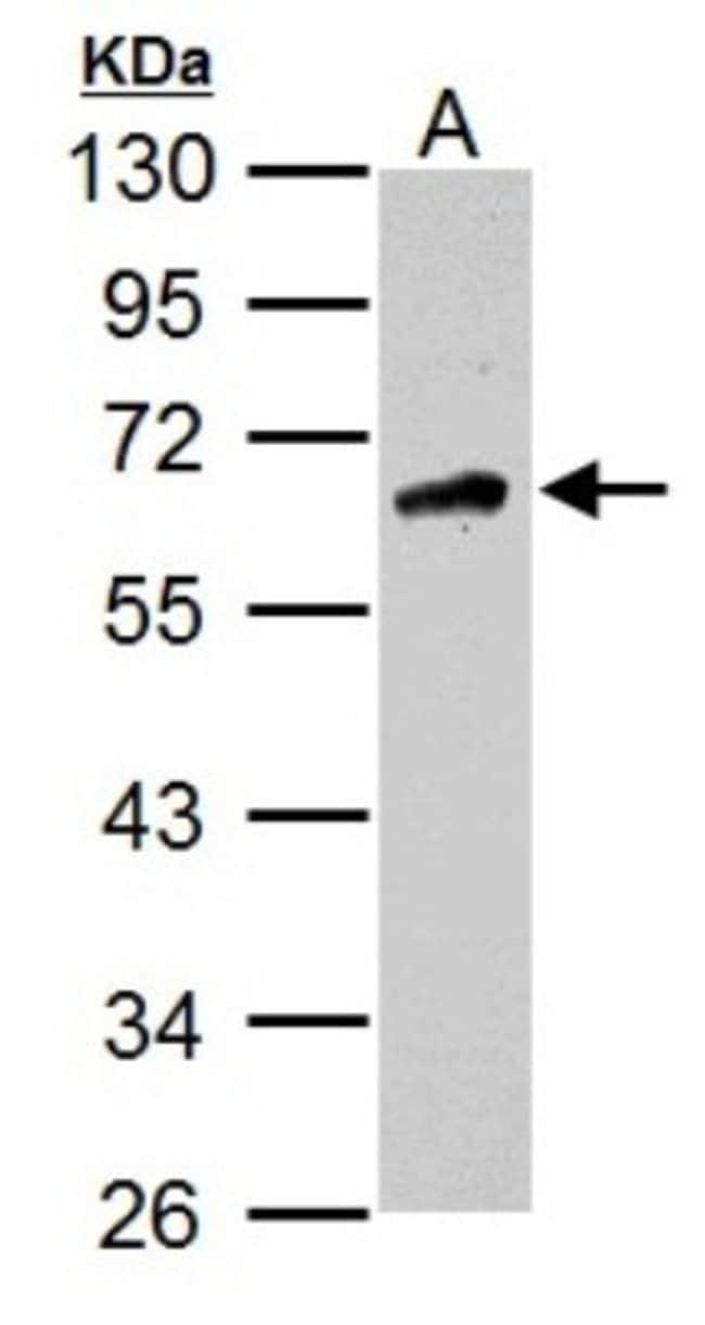 anti-CaMKK2, Polyclonal, Novus Biologicals 0.1mL; Unlabeled:Life Sciences