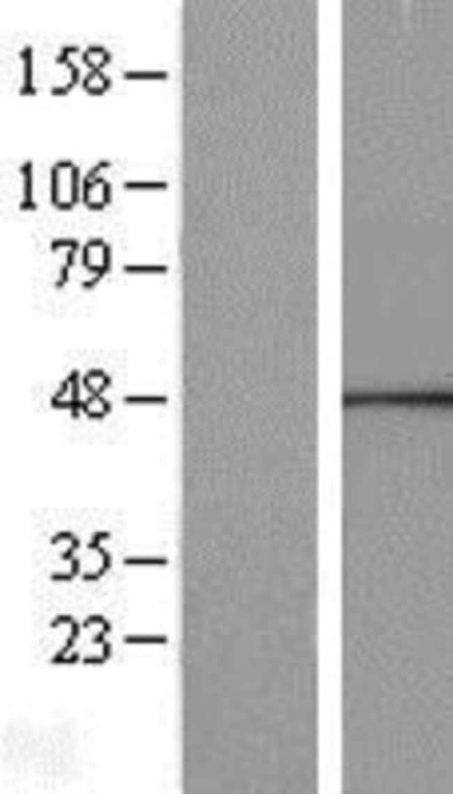 Novus Biologicals Calcium Activated Nucleotidase 1/CANT1 Overexpression