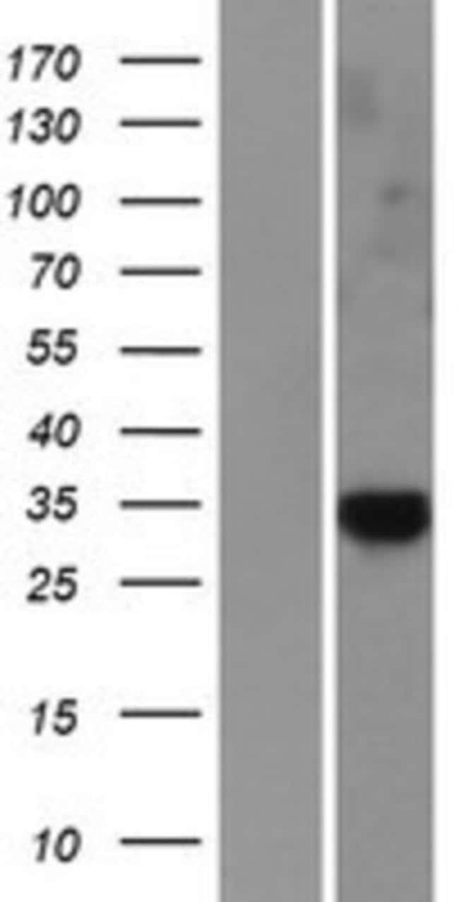 Novus Biologicals CAPC / LRRC26 Overexpression Lysate (Native) 0.1mg:Life