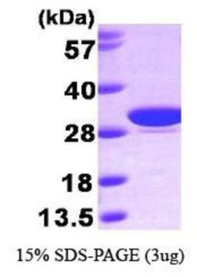 Novus Biologicals Human Carbonic Anhydrase I/CA1 Protein 0.1mg; Unlabeled:Life