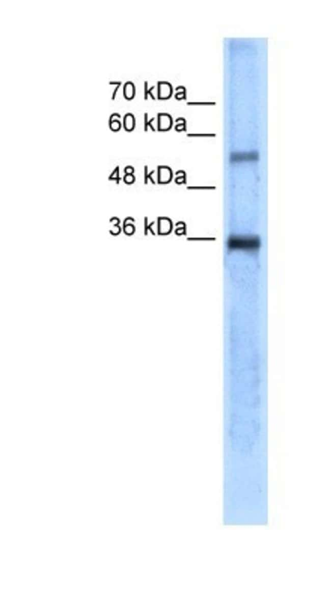 Carbonic Anhydrase VIII/CA8 Rabbit anti-Human, Polyclonal, Novus Biologicals