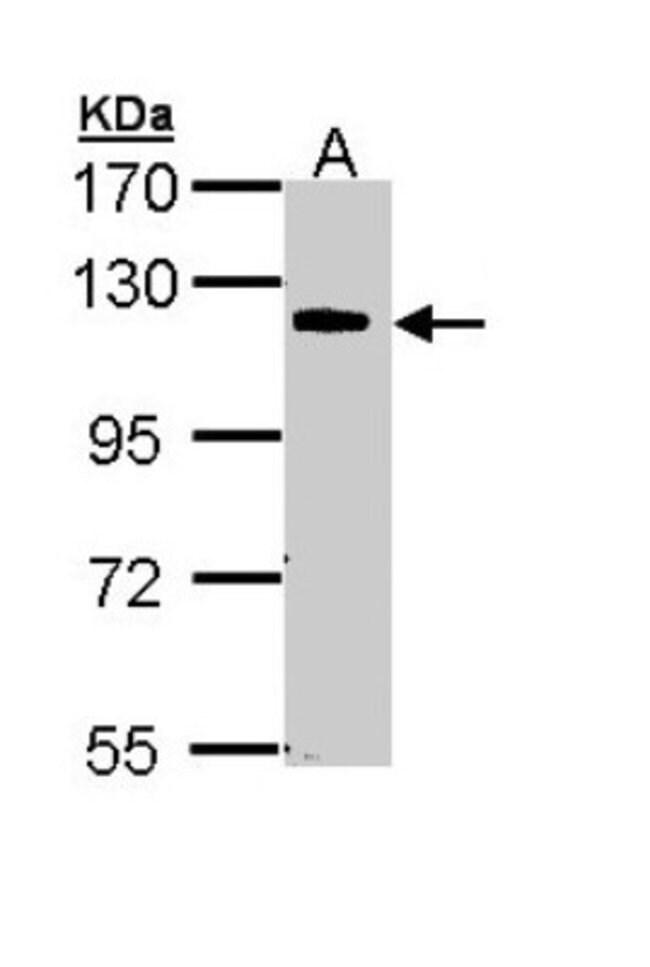 anti-CARD10, Polyclonal, Novus Biologicals 0.1mg; Unlabeled:Antibodies