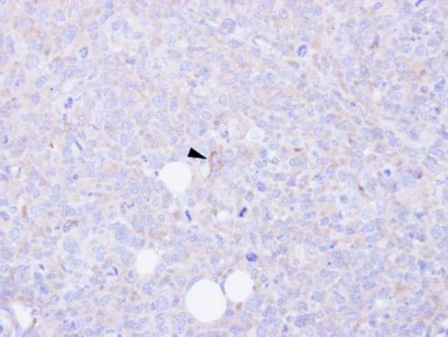 anti-CARD9, Polyclonal, Novus Biologicals 0.1mg; Unlabeled:Antibodies