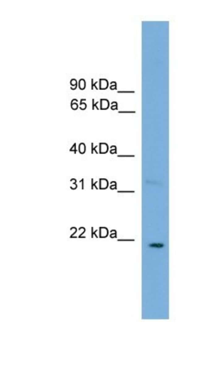 Cardiotrophin-1/CT-1 Rabbit anti-Human, Polyclonal, Novus Biologicals 100µL;