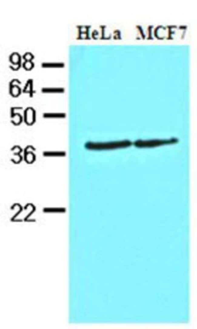 anti-Casein Kinase 1 alpha, Clone: 2E2, Novus Biologicals 0.1mL; Unlabeled:Life
