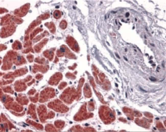 anti-Caspase-12, Polyclonal, Novus Biologicals 0.1mg; Unlabeled:Life Sciences