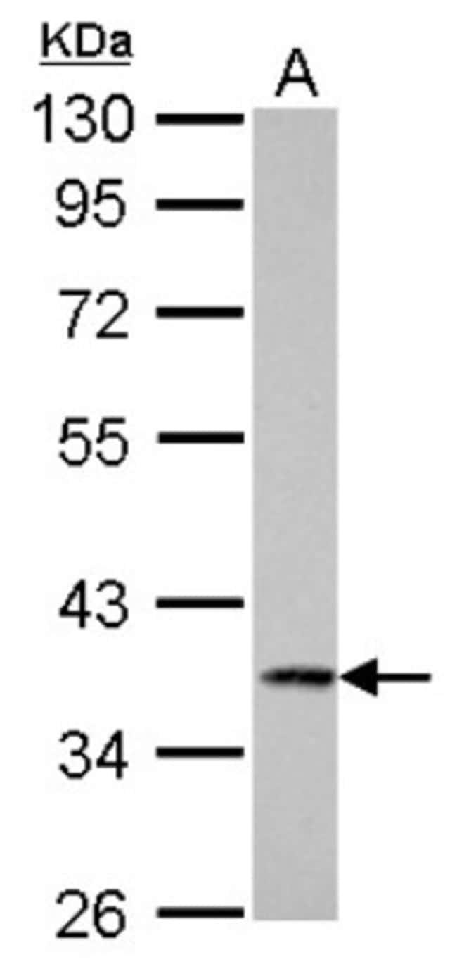 anti-Cathepsin S, Polyclonal, Novus Biologicals 0.1mL; Unlabeled:Antibodies