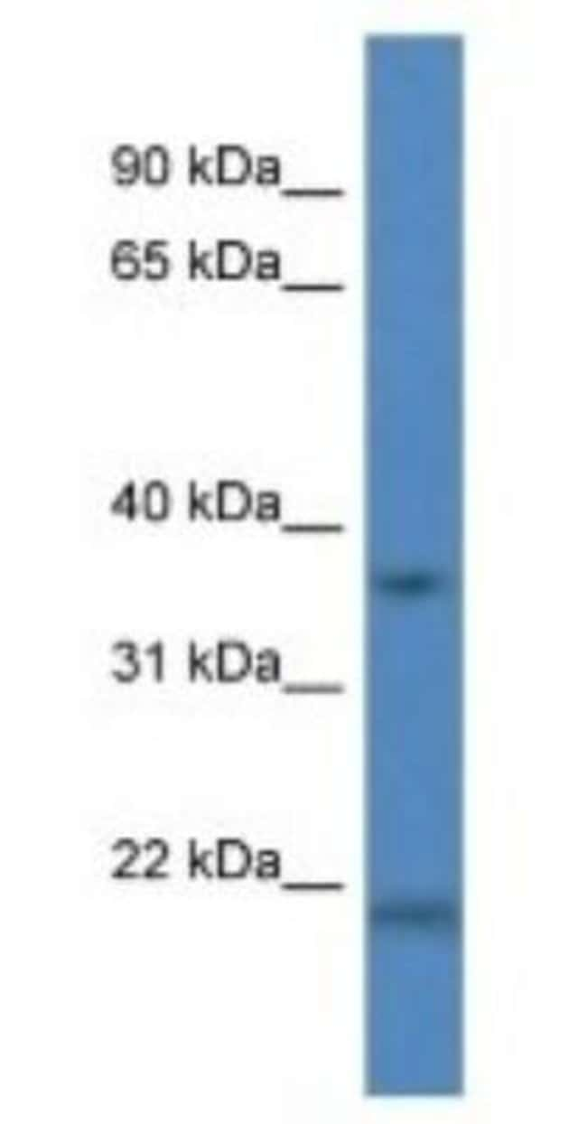 Cathepsin K Rabbit anti-Human, Polyclonal, Novus Biologicals 20µL;