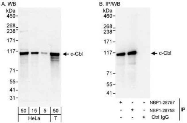 anti-CBL, Polyclonal, Novus Biologicals 0.1mL; Unlabeled:Life Sciences