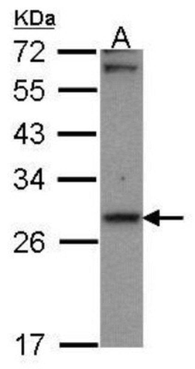 anti-CBR1, Polyclonal, Novus Biologicals 0.1mg; Unlabeled:Life Sciences
