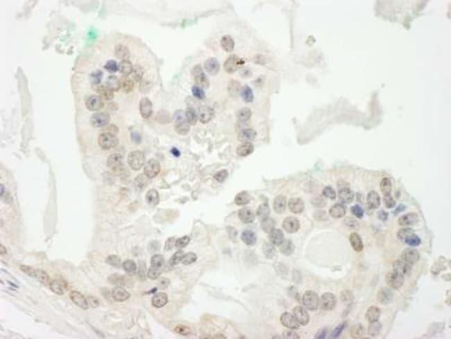 anti-CBX6, Polyclonal, Novus Biologicals 0.1mg; Unlabeled:Life Sciences