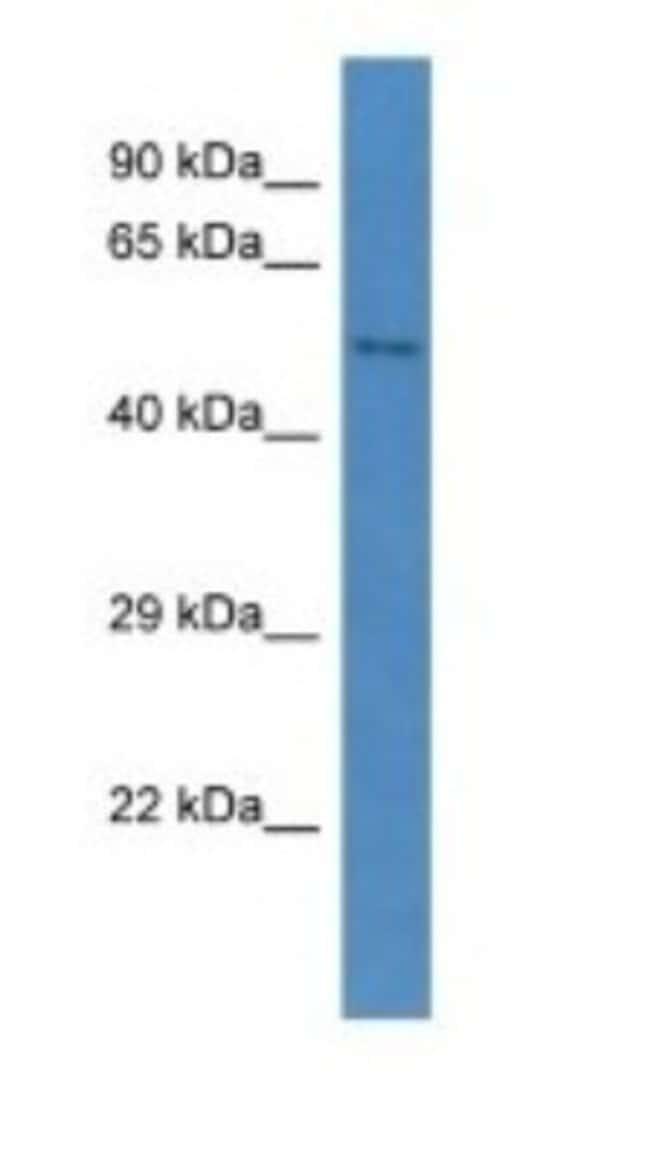 CCBE1 Rabbit anti-Mouse, Polyclonal, Novus Biologicals 20µL; Unlabeled