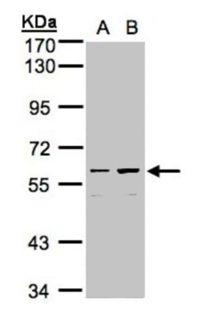 anti-CCDC102B, Polyclonal, Novus Biologicals 0.1mL; Unlabeled:Life Sciences