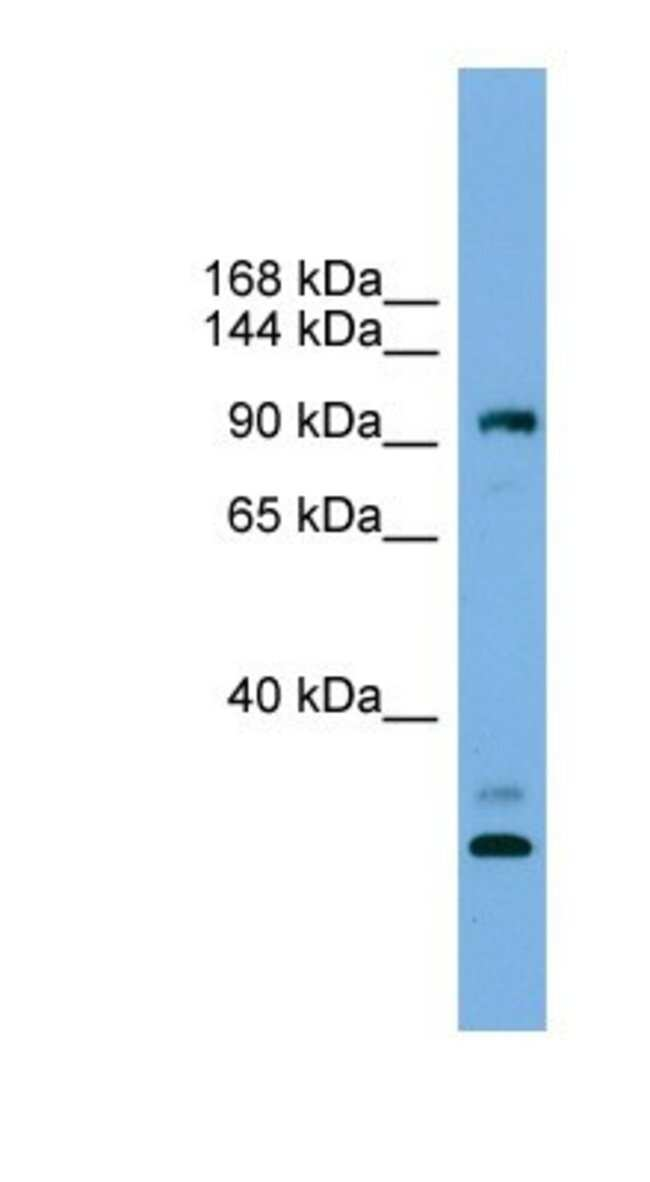 CCDC110 Rabbit anti-Human, Polyclonal, Novus Biologicals 20µL; Unlabeled