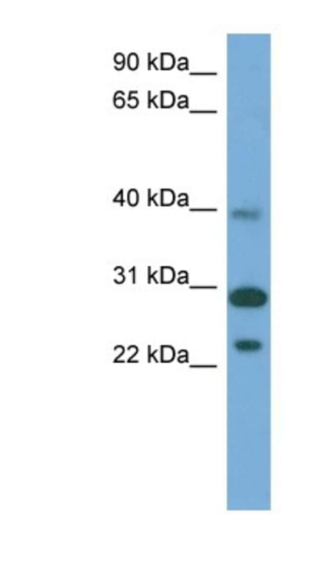 CCDC28A Rabbit anti-Human, Polyclonal, Novus Biologicals 100µL; Unlabeled:Life