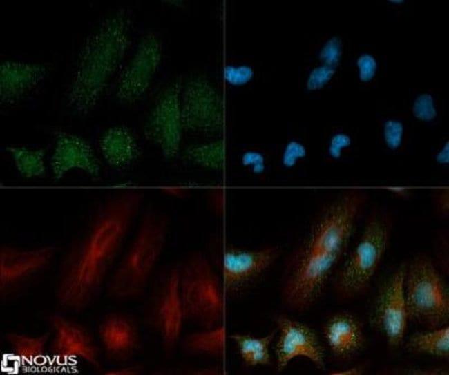 CCL2/MCP1 Rabbit anti-Human, Mouse, Rat, Polyclonal, Novus Biologicals:Antibodies:Primary