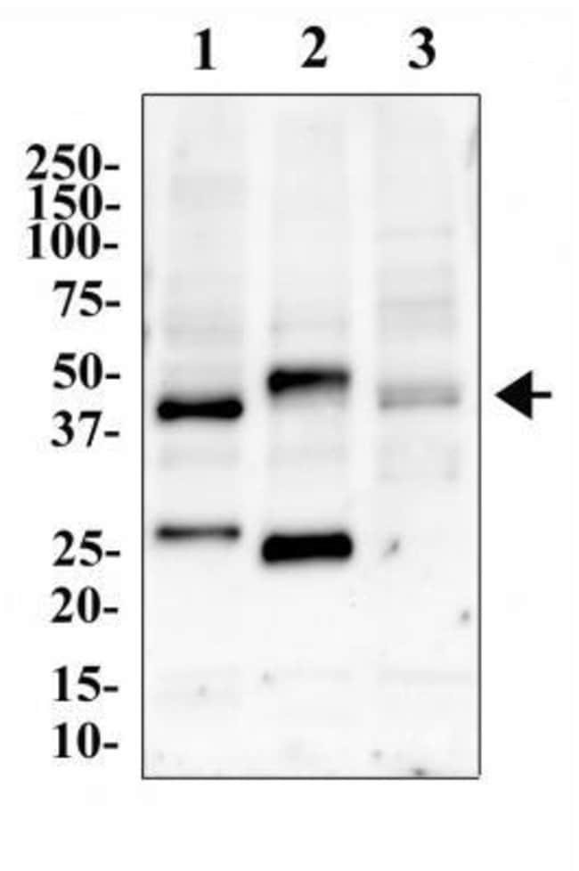 anti-CCR5, Polyclonal, Novus Biologicals:Antibodies:Primary Antibodies