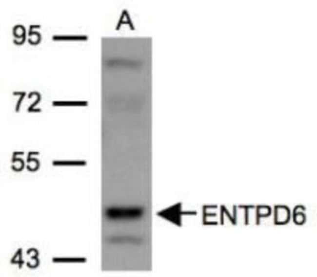 anti-CD39L2/ENTPD6, Polyclonal, Novus Biologicals 0.1mg; Unlabeled:Life