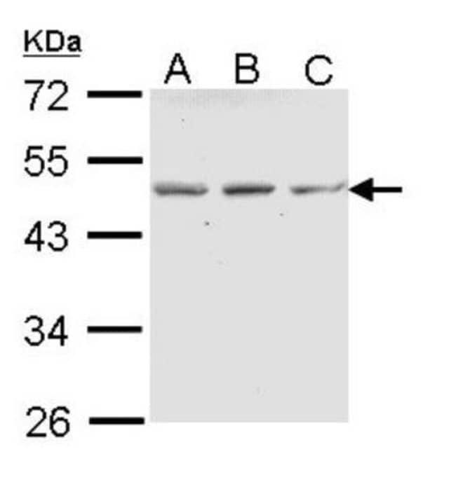 anti-CD39L4/ENTPD5, Polyclonal, Novus Biologicals 0.1mg; Unlabeled:Antibodies
