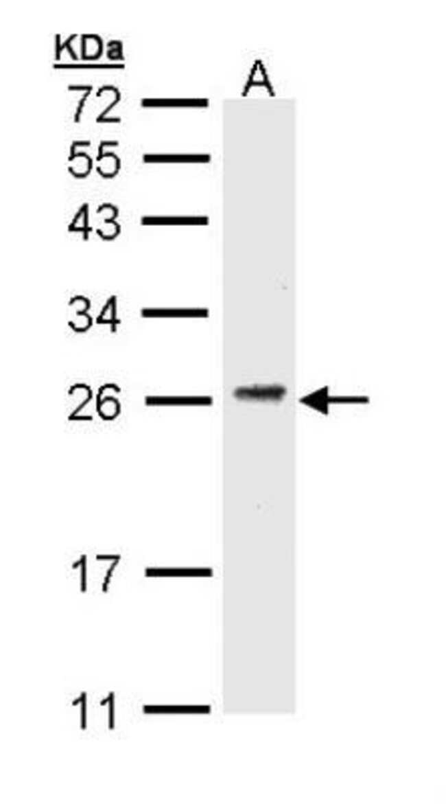 anti-CD3G, Polyclonal, Novus Biologicals 0.1mg; Unlabeled:Life Sciences