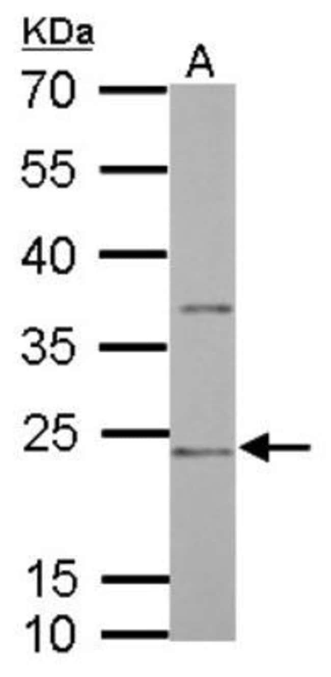 anti-CD74, Polyclonal, Novus Biologicals 0.1mL; Unlabeled:Life Sciences