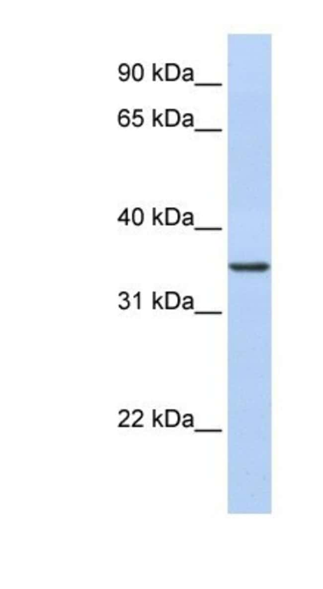 CDC42EP4 Rabbit anti-Human, Polyclonal, Novus Biologicals 20µL; Unlabeled