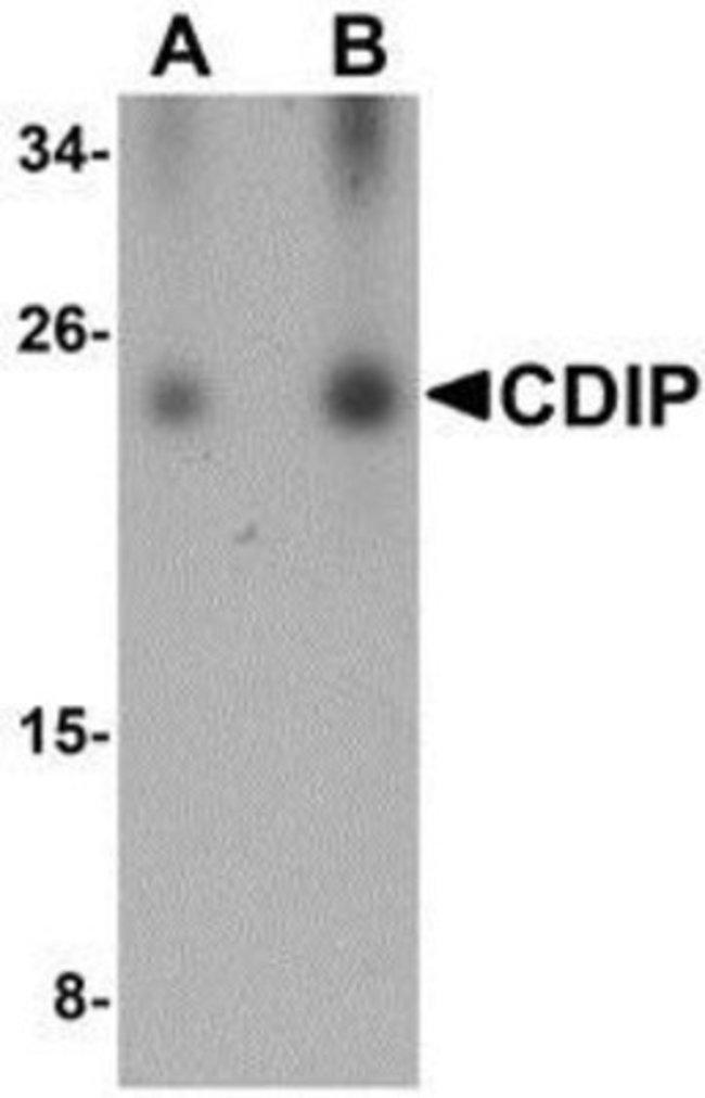 anti-CDIP, Polyclonal, Novus Biologicals 0.1mg; Unlabeled:Life Sciences